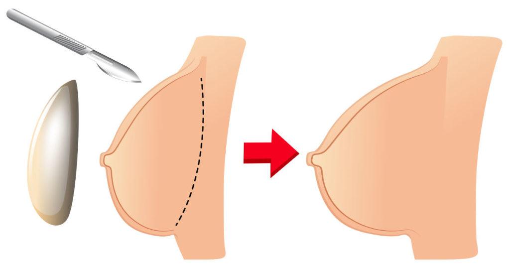 planując operację powiększenia piersi