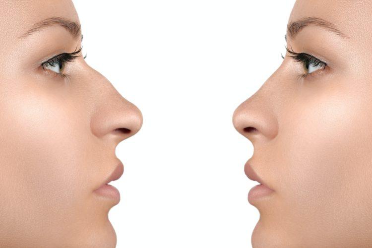 korekcja nosa z osteotomią