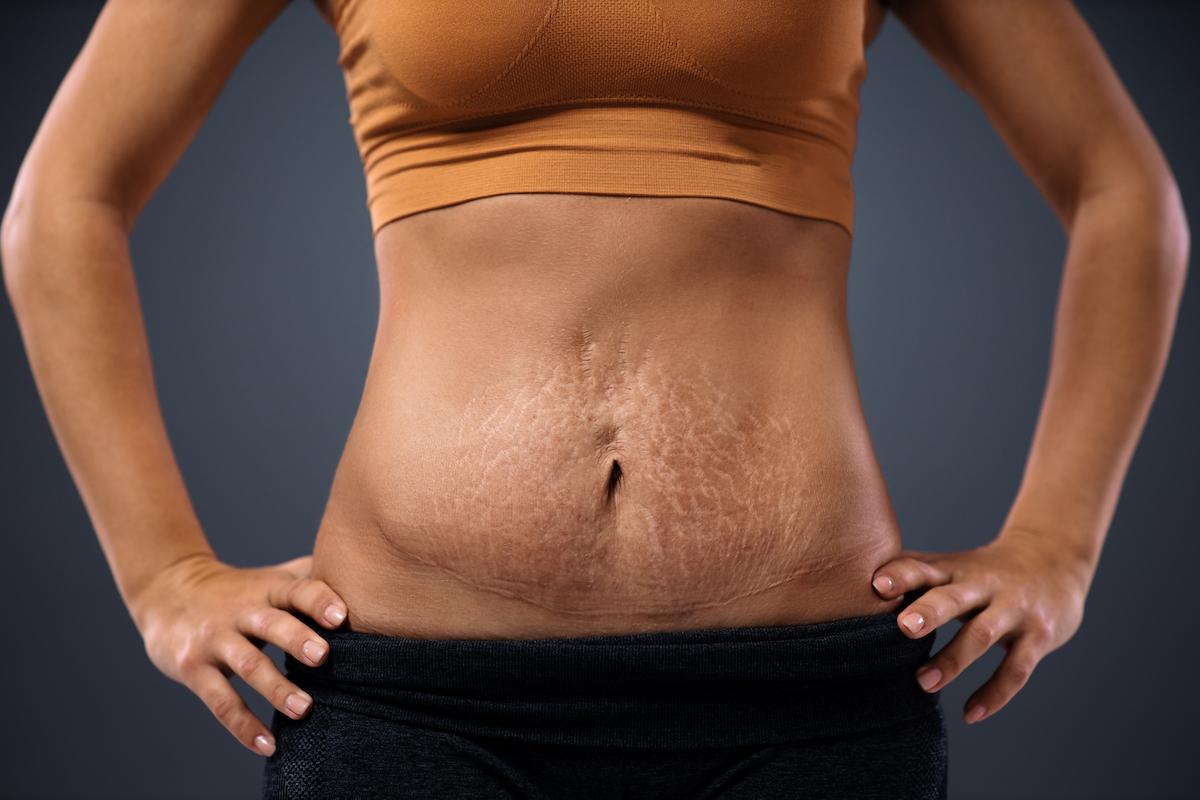 chirurgia plastyczna po ciąży mommy makeover